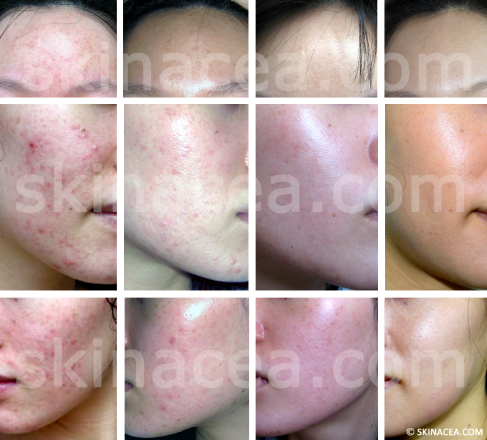My Acne Before and After Pictures