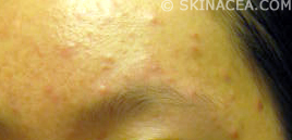 Picture of forehead acne